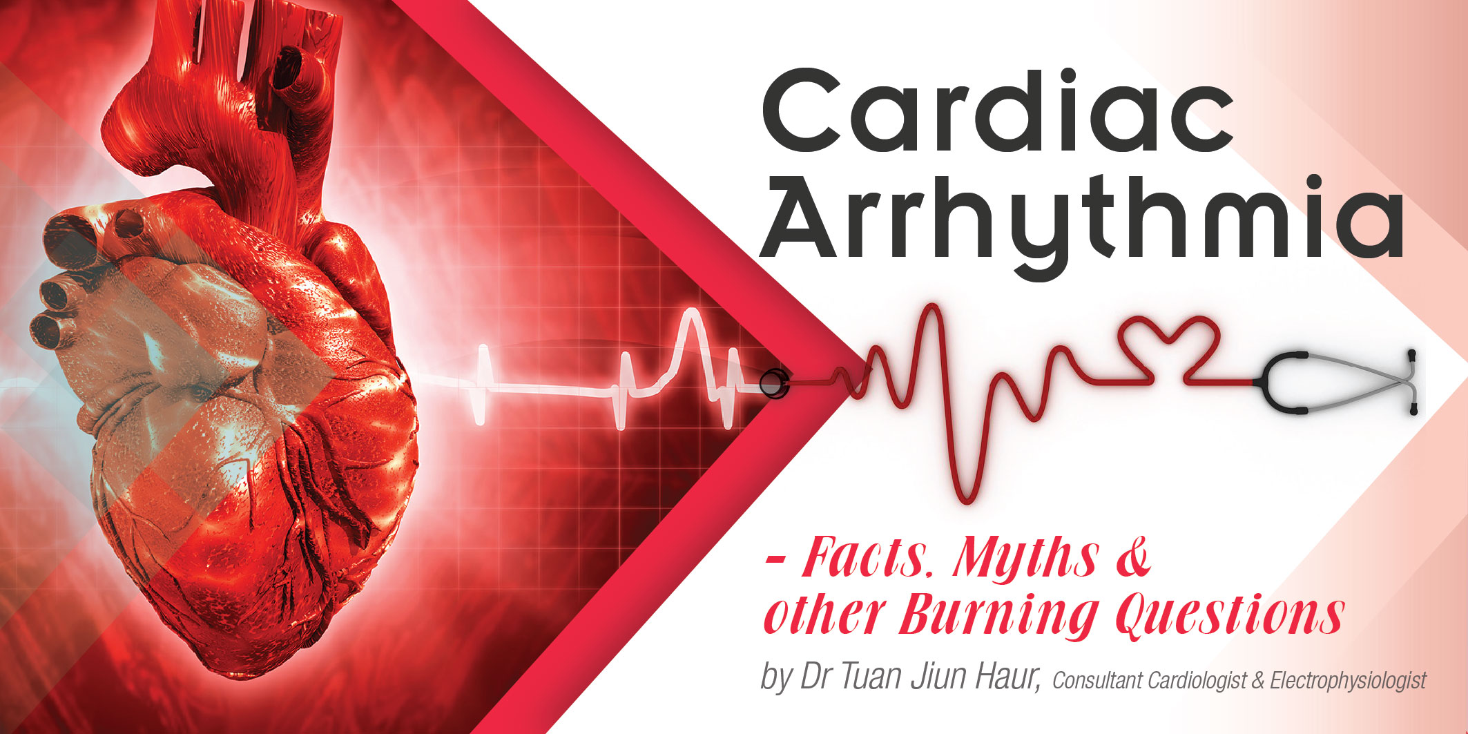 Cardiac-Arrhythmia-01.jpg